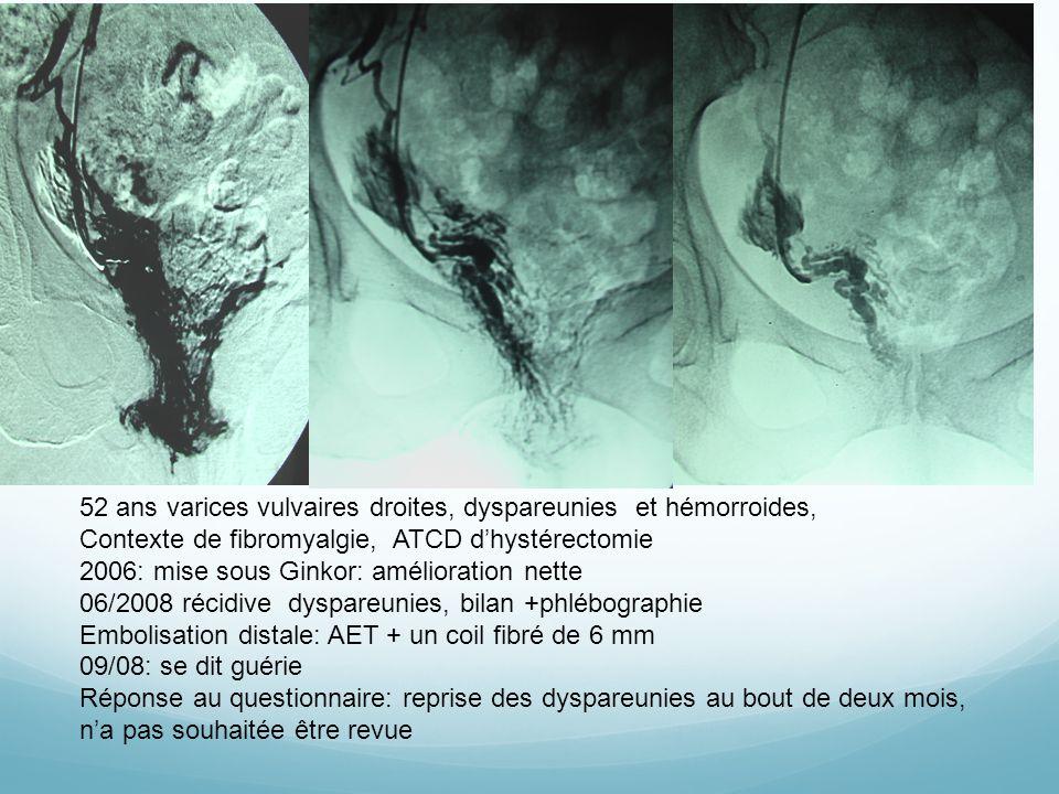 52 ans varices vulvaires droites, dyspareunies et hémorroides, Contexte de fibromyalgie, ATCD dhystérectomie 2006: mise sous Ginkor: amélioration nett
