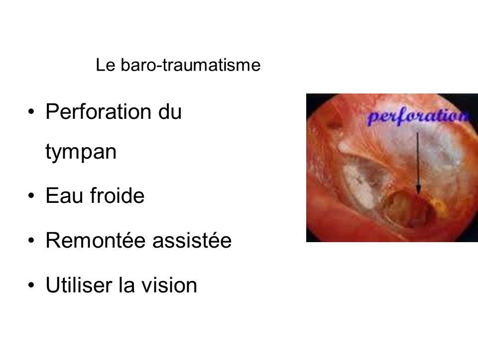Le baro-traumatisme Perforation du tympan Eau froide Remontée assistée Utiliser la vision