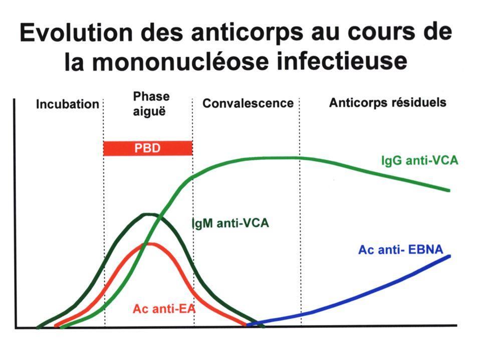 Anticorps EBV Profils habituels VCAVCAEA EBNA IgG IgMIgG Séronégatif - - - - Primoinfection + + - Infection ancienne + - + ____________________________________________________ Burkitt++ -++ ____________________________________________________ NPC++ -++ ++