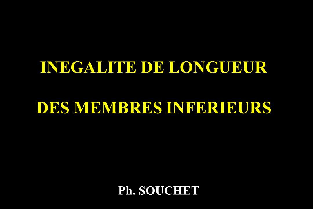 INEGALITE DE LONGUEUR DES MEMBRES INFERIEURS Ph. SOUCHET