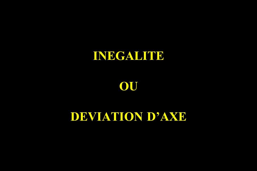 INEGALITE OU DEVIATION DAXE