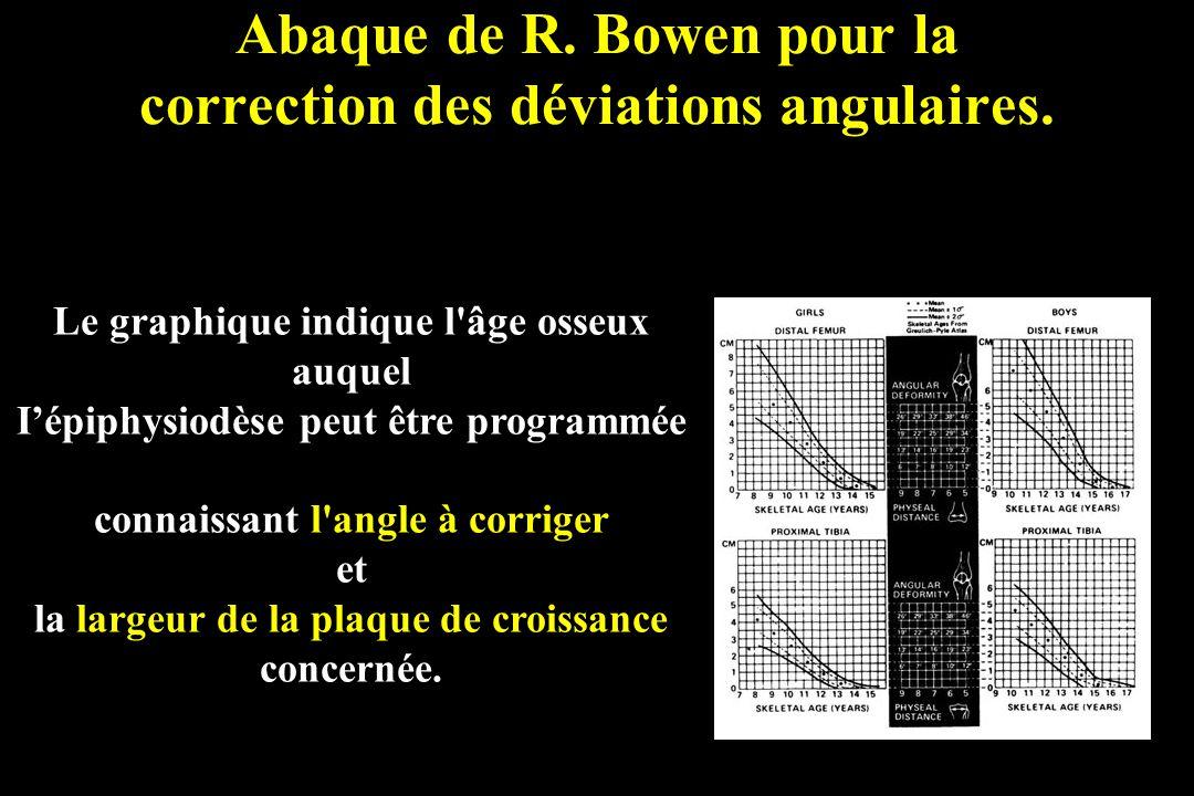 Abaque de R. Bowen pour la correction des déviations angulaires. Le graphique indique l'âge osseux auquel Iépiphysiodèse peut être programmée connaiss