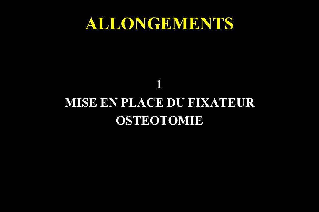 ALLONGEMENTS 1 MISE EN PLACE DU FIXATEUR OSTEOTOMIE