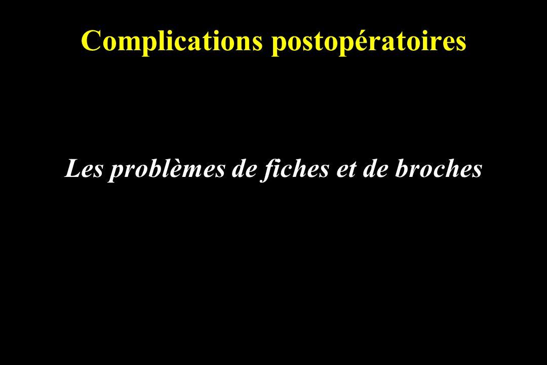 Complications postopératoires Les problèmes de fiches et de broches