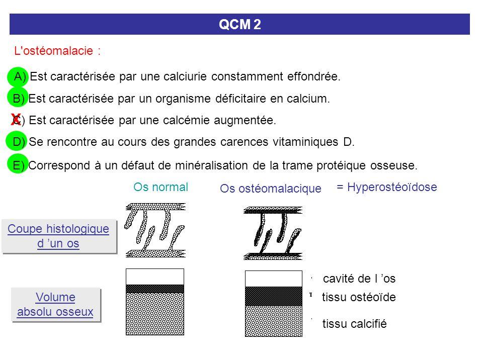 X L'ostéomalacie : QCM 2 A) Est caractérisée par une calciurie constamment effondrée. C) Est caractérisée par une calcémie augmentée. B) Est caractéri