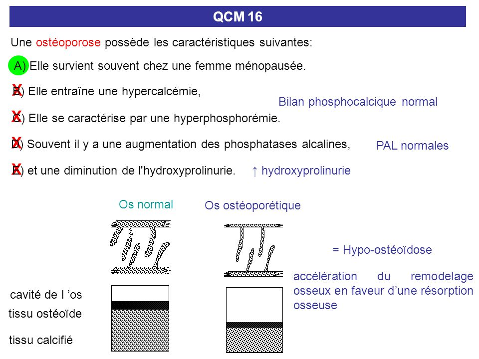 X X X X D) Souvent il y a une augmentation des phosphatases alcalines, QCM 16 Une ostéoporose possède les caractéristiques suivantes: A) Elle survient