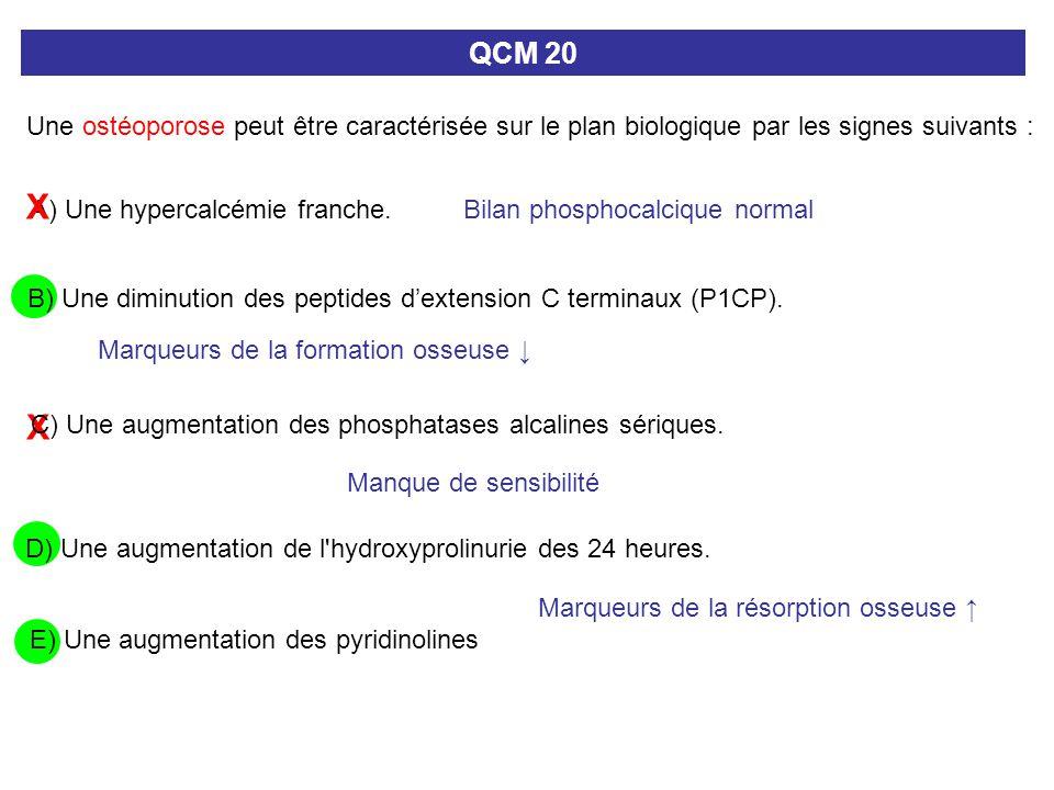 X A) Une hypercalcémie franche. QCM 20 Une ostéoporose peut être caractérisée sur le plan biologique par les signes suivants : C) Une augmentation des