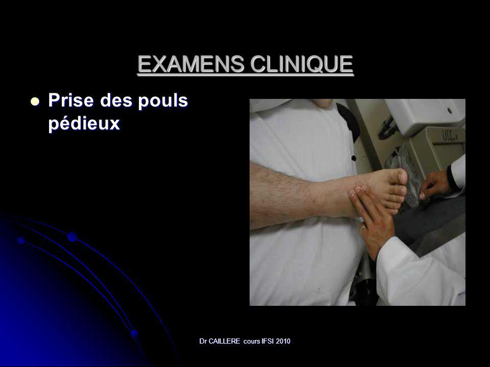 Dr CAILLERE cours IFSI 2010 EXAMENS CLINIQUE Prise des pouls pédieux Prise des pouls pédieux