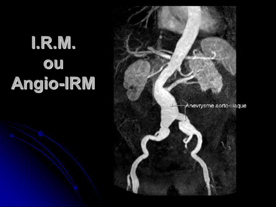 I.R.M. ou Angio-IRM