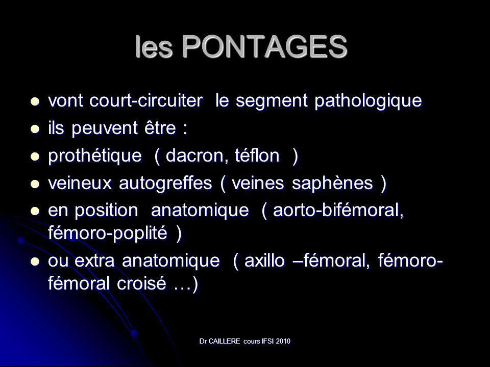 Dr CAILLERE cours IFSI 2010 les PONTAGES les PONTAGES vont court-circuiter le segment pathologique vont court-circuiter le segment pathologique ils peuvent être : ils peuvent être : prothétique ( dacron, téflon ) prothétique ( dacron, téflon ) veineux autogreffes ( veines saphènes ) veineux autogreffes ( veines saphènes ) en position anatomique ( aorto-bifémoral, fémoro-poplité ) en position anatomique ( aorto-bifémoral, fémoro-poplité ) ou extra anatomique ( axillo –fémoral, fémoro- fémoral croisé …) ou extra anatomique ( axillo –fémoral, fémoro- fémoral croisé …)