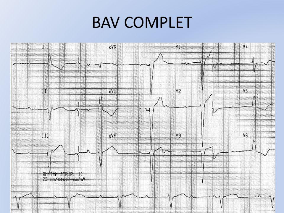 BAV COMPLET