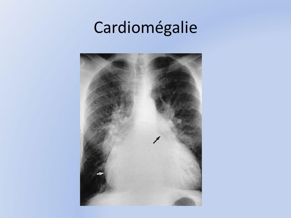 Cardiomégalie