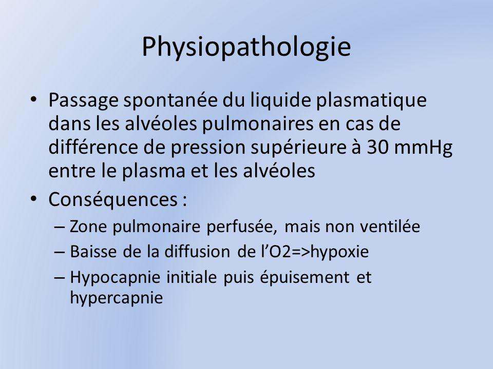 Etiologies Insuffisance ventriculaire gauche : Cardiopathie valvulaire, hypertensive ou ischémique.