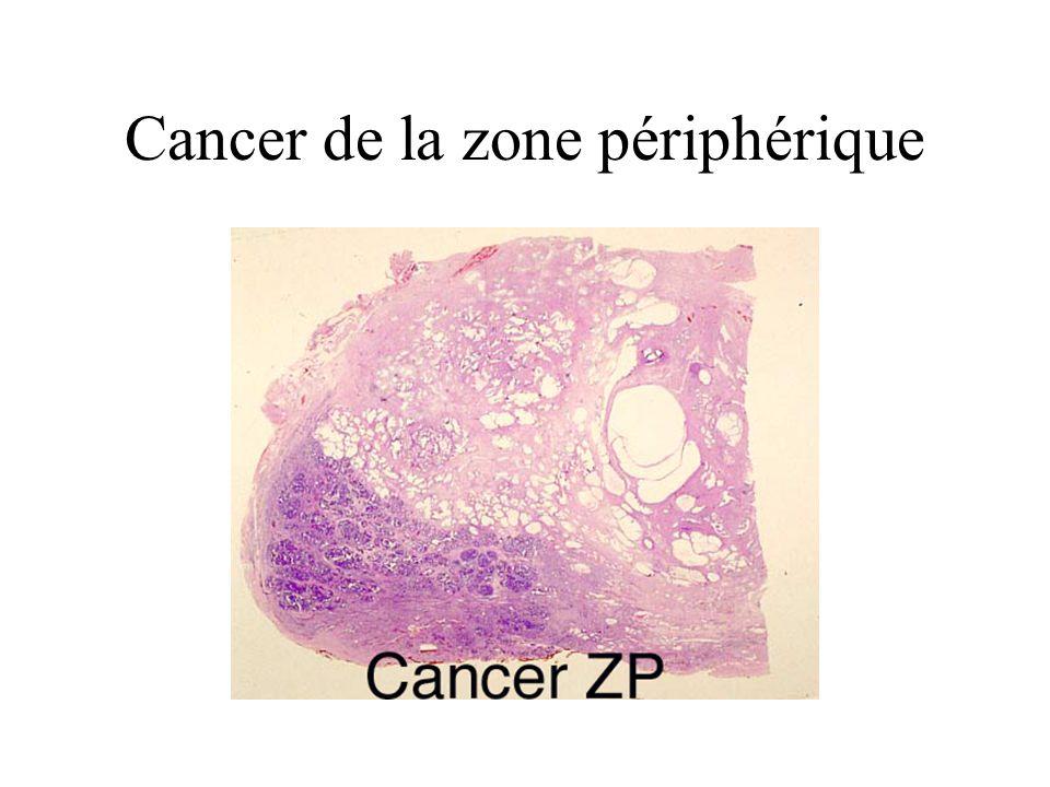 Cancer de la zone périphérique