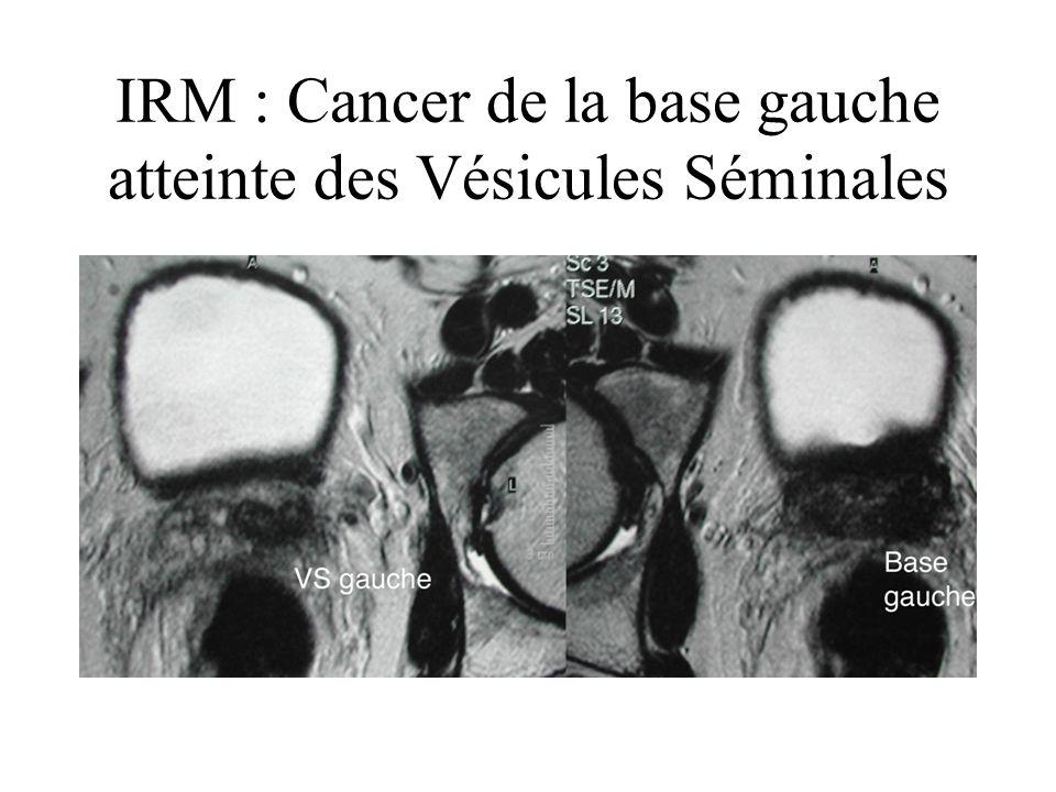 IRM : Cancer de la base gauche atteinte des Vésicules Séminales