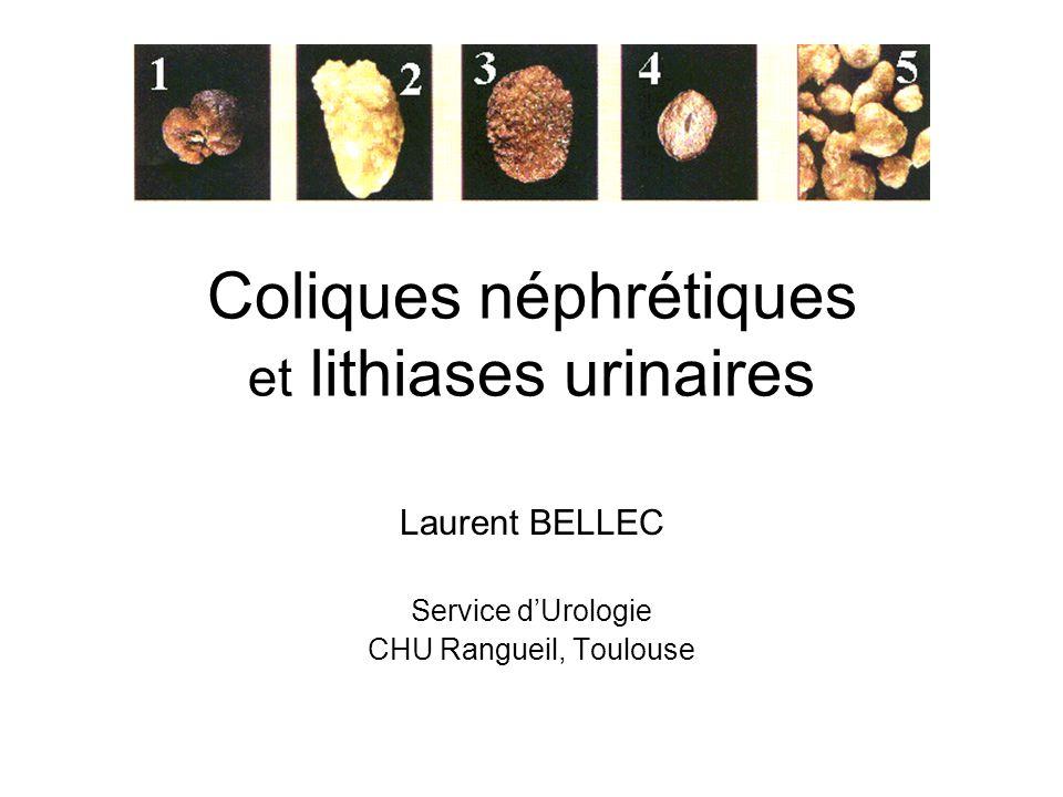 Coliques néphrétiques et lithiases urinaires Laurent BELLEC Service dUrologie CHU Rangueil, Toulouse