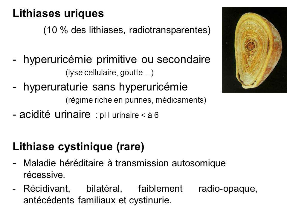 Lithiases uriques (10 % des lithiases, radiotransparentes) -hyperuricémie primitive ou secondaire (lyse cellulaire, goutte…) -hyperuraturie sans hyper