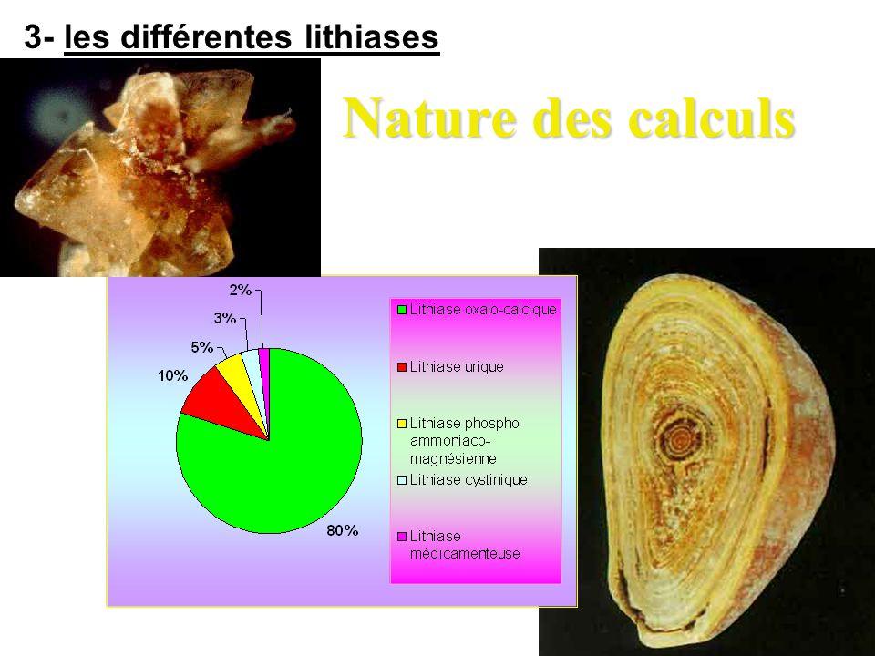 Nature des calculs 3- les différentes lithiases