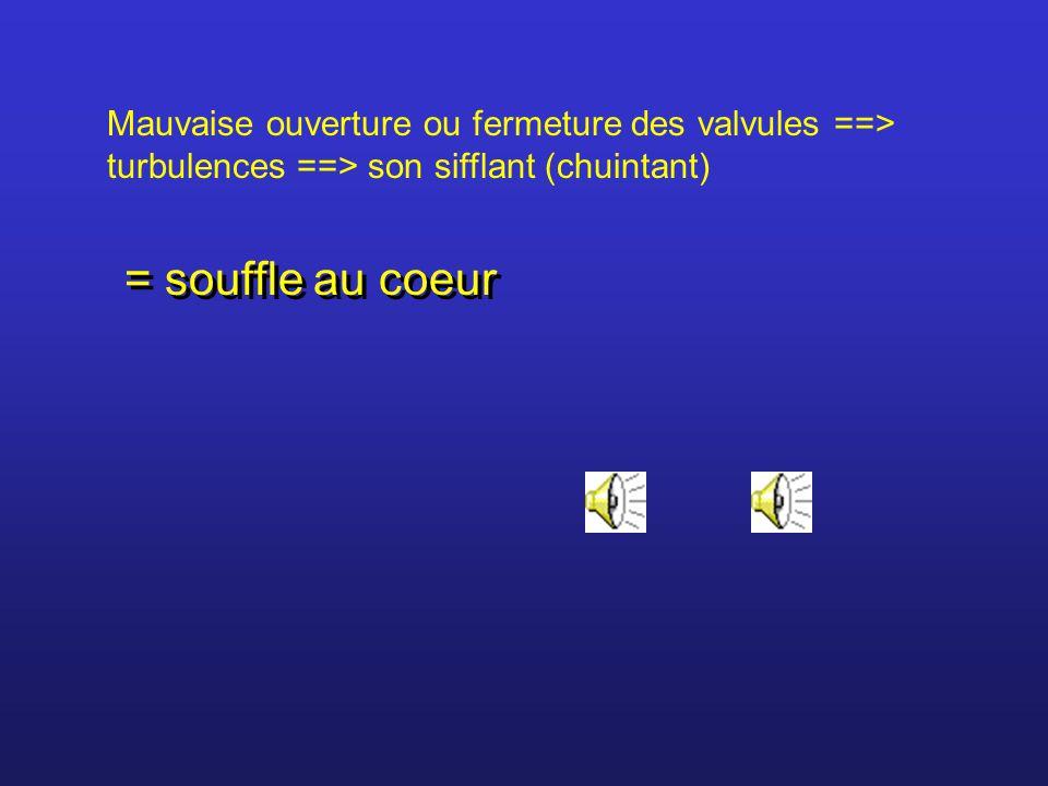 Mauvaise ouverture ou fermeture des valvules ==> turbulences ==> son sifflant (chuintant) = souffle au coeur