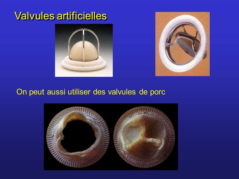 Systole auriculaire (~ 0,1 s) Diastole générale (~ 0,4 s) La révolution cardiaque Le cercle intérieur représente les ventricules et le cercle extérieur, les oreillettes Systole ventriculaire (~ 0,3 s)