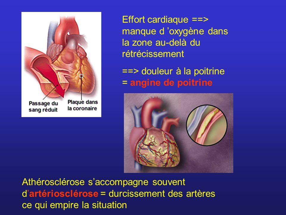 Effort cardiaque ==> manque d oxygène dans la zone au-delà du rétrécissement ==> douleur à la poitrine = angine de poitrine Athérosclérose saccompagne