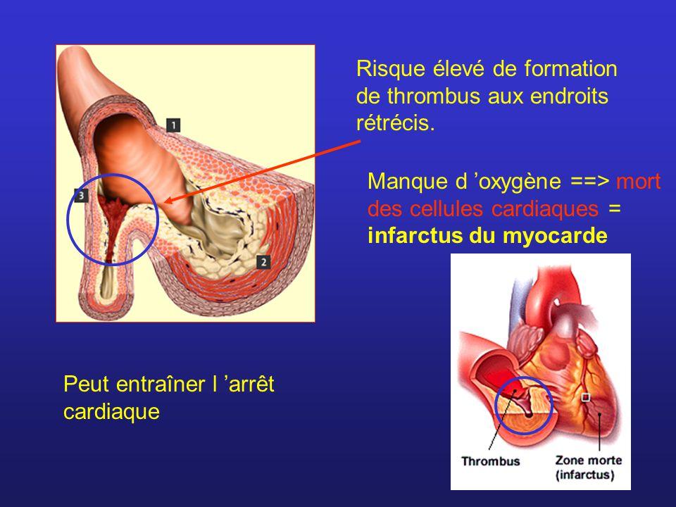 Risque élevé de formation de thrombus aux endroits rétrécis. Manque d oxygène ==> mort des cellules cardiaques = infarctus du myocarde Peut entraîner