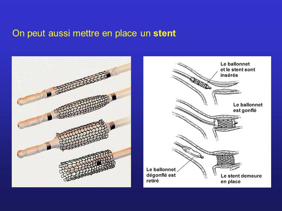 On peut aussi mettre en place un stent