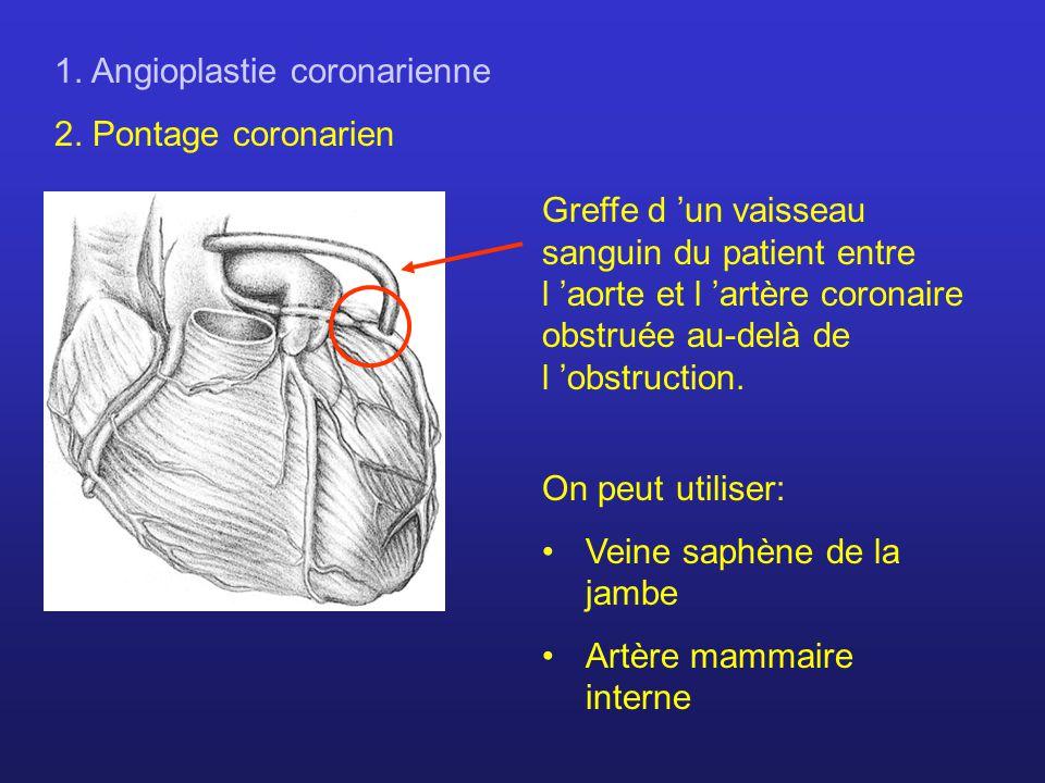 1. Angioplastie coronarienne 2. Pontage coronarien Greffe d un vaisseau sanguin du patient entre l aorte et l artère coronaire obstruée au-delà de l o