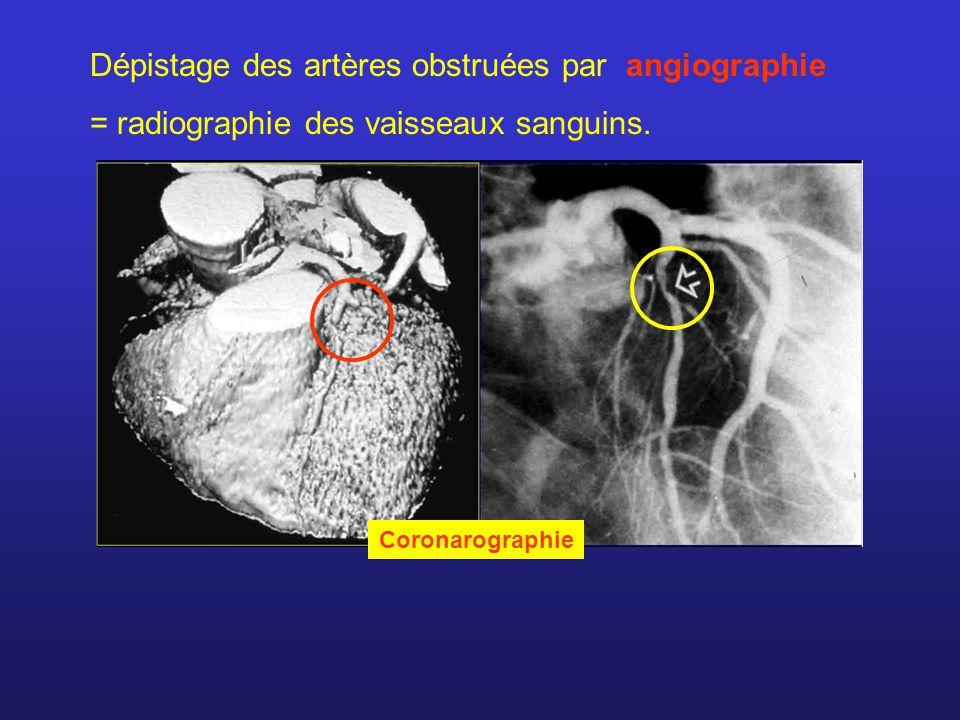Électrocardiogramme = enregistrement de l activité électrique du cœur Électrodes placées: Sur les bras et les jambes Sur la poitrines Électrodes actives = dérivations Ex.