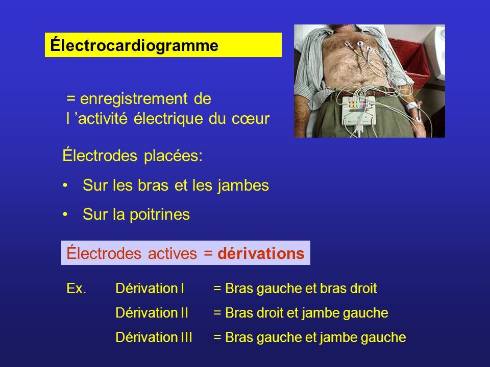 Électrocardiogramme = enregistrement de l activité électrique du cœur Électrodes placées: Sur les bras et les jambes Sur la poitrines Électrodes activ