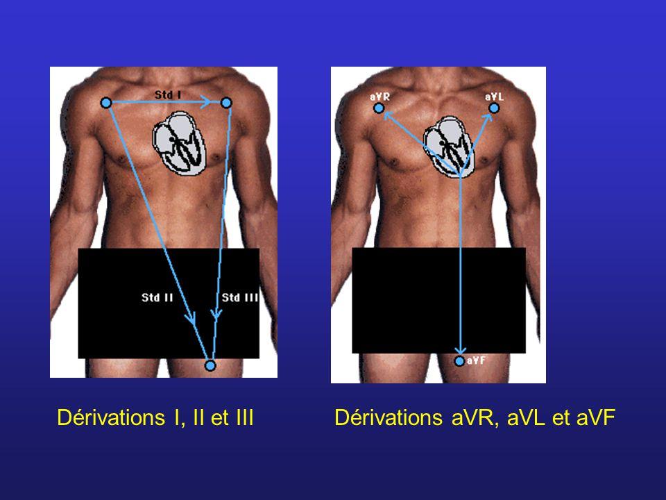Dérivations I, II et IIIDérivations aVR, aVL et aVF