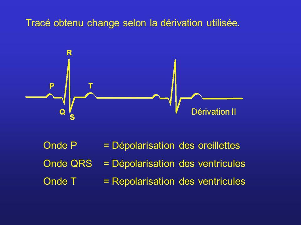 Tracé obtenu change selon la dérivation utilisée. Onde P= Dépolarisation des oreillettes Onde QRS= Dépolarisation des ventricules Onde T = Repolarisat