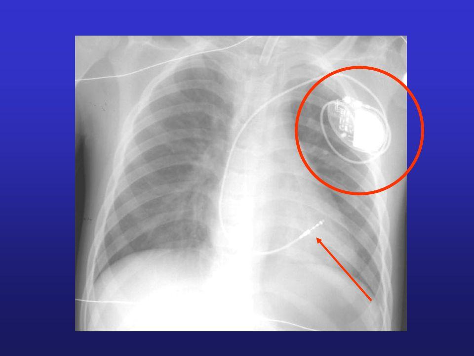 Défibrillation suite à une fibrillation ventriculaire Fibrillation cardiaque = perte totale de la coordination des contractions Fibrillation auriculaire