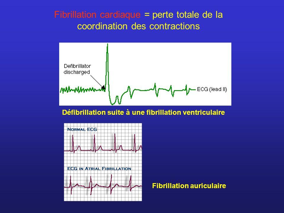 Défibrillation suite à une fibrillation ventriculaire Fibrillation cardiaque = perte totale de la coordination des contractions Fibrillation auriculai