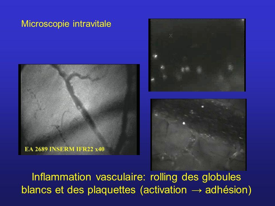 Inflammation vasculaire: rolling des globules blancs et des plaquettes (activation adhésion) Microscopie intravitale