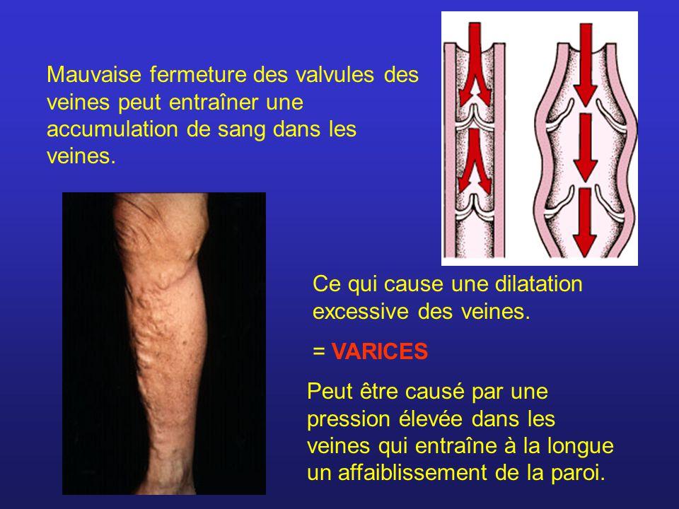 Mauvaise fermeture des valvules des veines peut entraîner une accumulation de sang dans les veines. Peut être causé par une pression élevée dans les v
