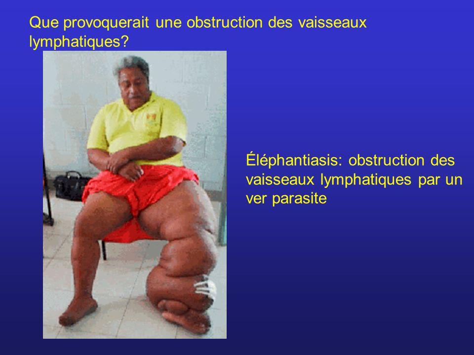 Que provoquerait une obstruction des vaisseaux lymphatiques? Éléphantiasis: obstruction des vaisseaux lymphatiques par un ver parasite