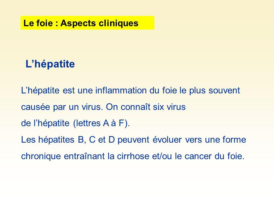 Le foie : Aspects cliniques Lhépatite est une inflammation du foie le plus souvent causée par un virus. On connaît six virus de lhépatite (lettres A à