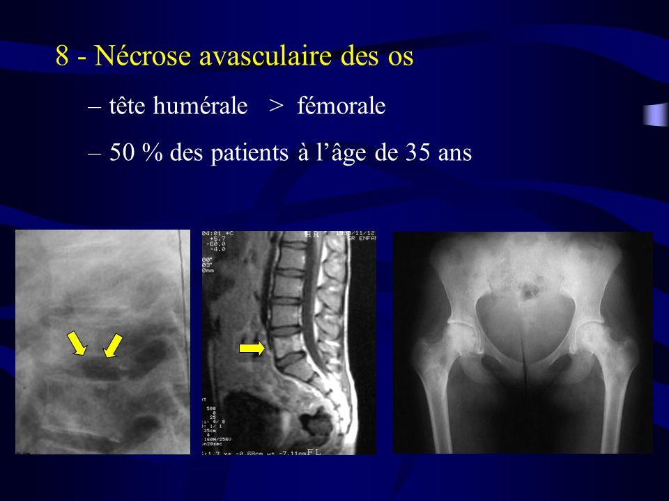 8 - Nécrose avasculaire des os –tête humérale > fémorale –50 % des patients à lâge de 35 ans