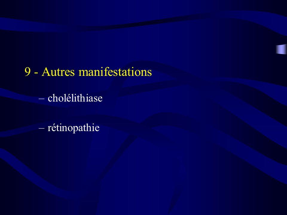 9 - Autres manifestations –cholélithiase –rétinopathie