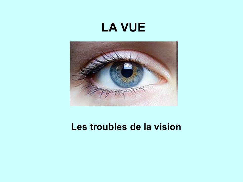 LA VUE Les troubles de la vision