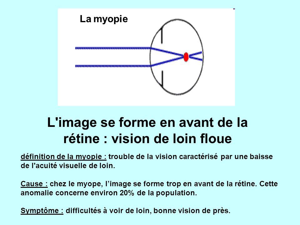 La myopie L image se forme en avant de la rétine : vision de loin floue définition de la myopie : trouble de la vision caractérisé par une baisse de l acuité visuelle de loin.