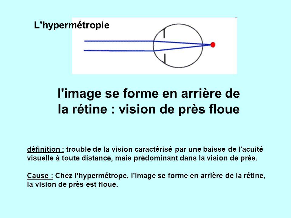 L hypermétropie l image se forme en arrière de la rétine : vision de près floue définition : trouble de la vision caractérisé par une baisse de l acuité visuelle à toute distance, mais prédominant dans la vision de près.