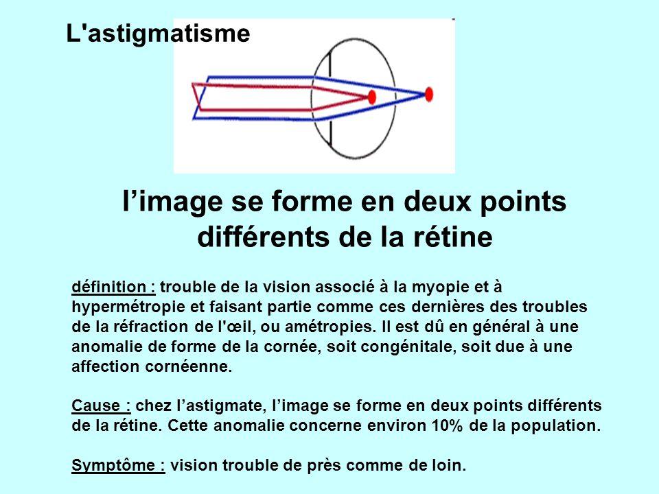 L astigmatisme définition : trouble de la vision associé à la myopie et à hypermétropie et faisant partie comme ces dernières des troubles de la réfraction de l œil, ou amétropies.