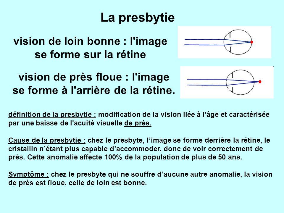 vision de loin bonne : l image se forme sur la rétine vision de près floue : l image se forme à l arrière de la rétine.