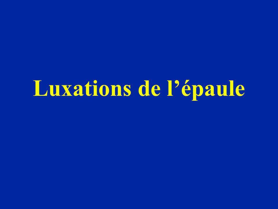 Évolution des luxations antérieures Les luxations récidivantes sont fréquentes Intervalle libre variable Traumatismes parfois minimes ou simple RE et abduction Parfois luxations multiples réduites spontanément par le patient lui-même