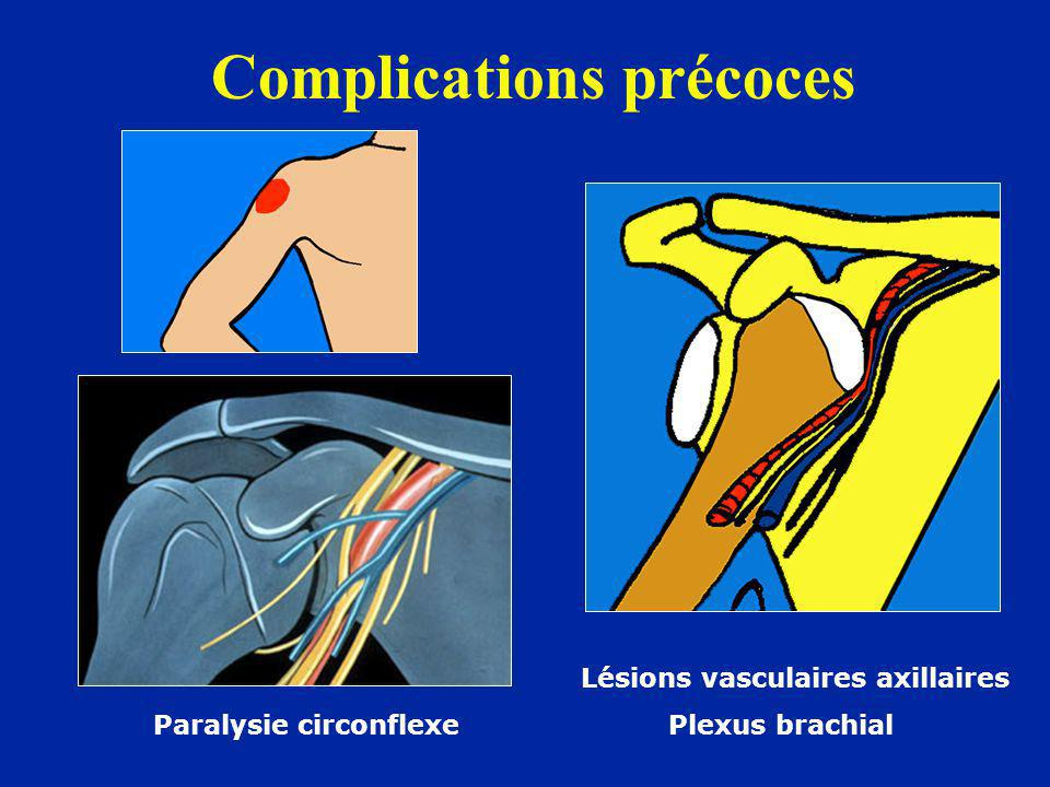 Complications précoces Lésions vasculaires axillaires Paralysie circonflexe Plexus brachial