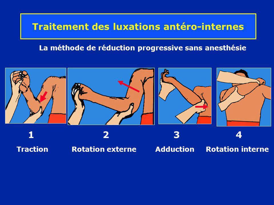 La méthode de réduction progressive sans anesthésie Traction Rotation externe Adduction Rotation interne 1 2 3 4 Traitement des luxations antéro-inter