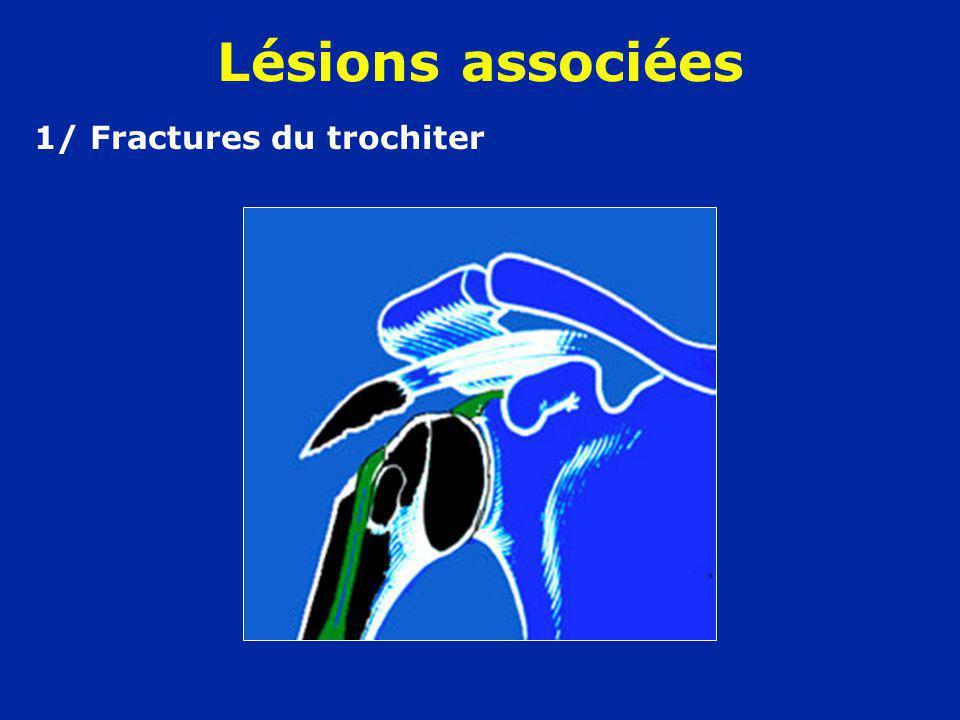 1/ Fractures du trochiter Lésions associées