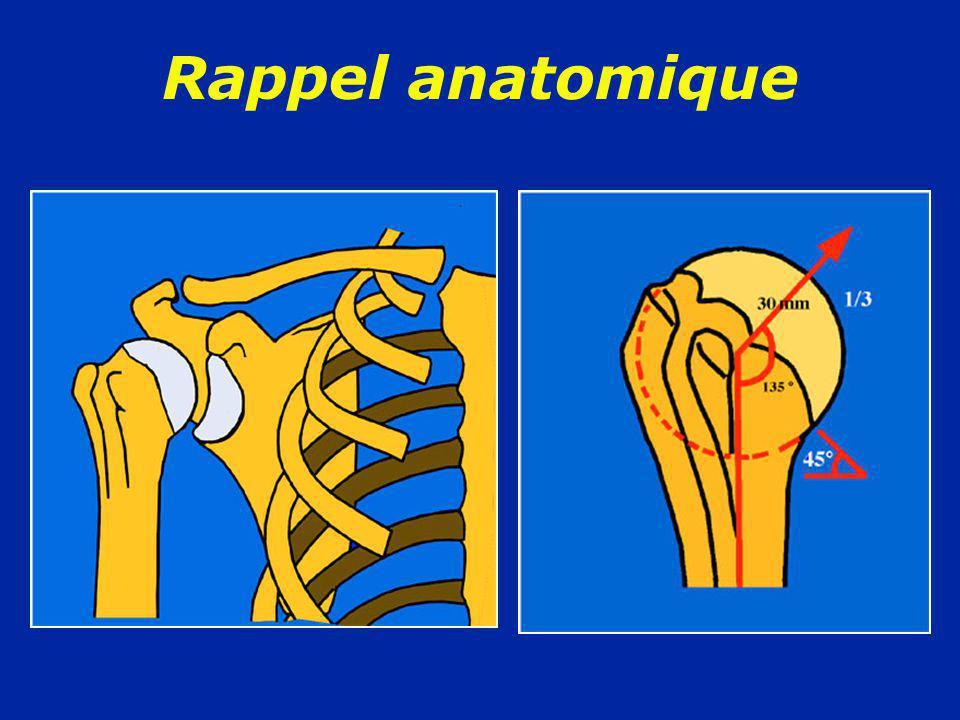 Traitement des luxations récidivantes antérieures 1/ Opération de Bankart : capsuloplastie antérieure Application de la capsule contre los en utilisant des points trans-osseux ou en utilisant des agrafes ou des petites vis